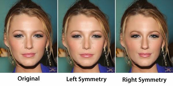 Facial Symmetry Surgery 78